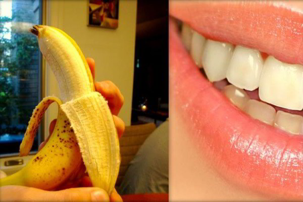 Cách làm trắng răng bằng vỏ chuối cực hiệu quả