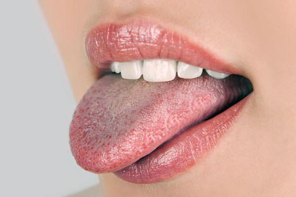 Cách phòng chống bệnh lưỡi trắng