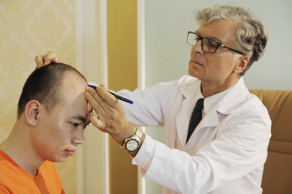 Tổng hợp các nguyên nhân rụng tóc ở nam giới