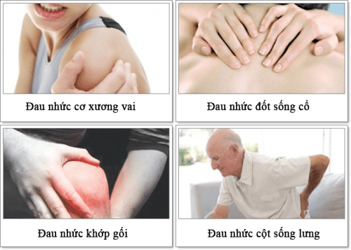 một số bệnh đau xương khớp thường gặp