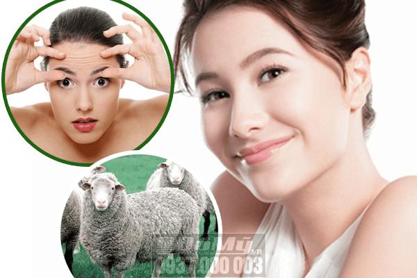 Nên dùng viên uống nhau thai cừu loại nào?