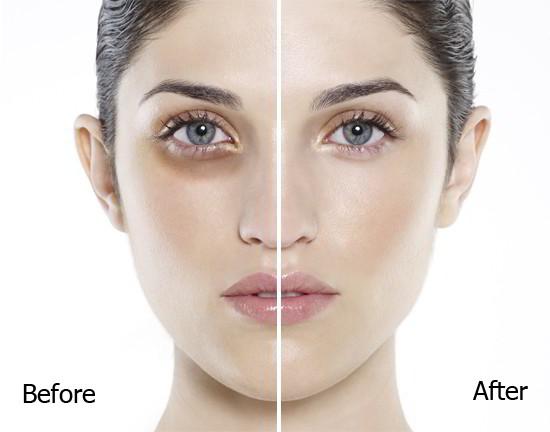 Cách sử dụng kem chống thâm mắt của Nhật kumargic eye hiệu quả